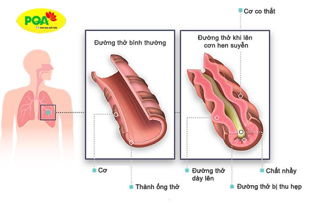 Bệnh hen suyễn có nguy hiểm không