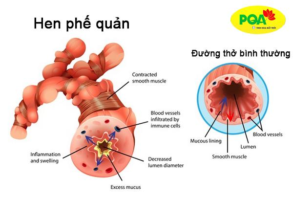 Hình ảnh bệnh hen suyễn