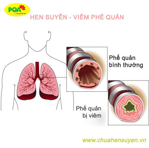 Bệnh hen suyễn gây bít tắc đường thở