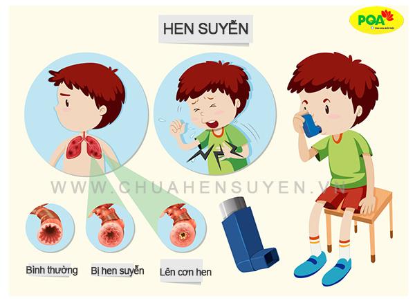 Bệnh hen suyễn ở trẻ em