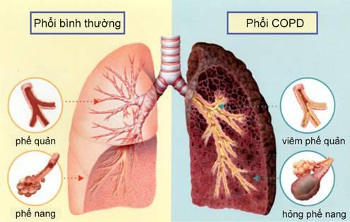 Hình ảnh phổi bị tắc nghẽn mạn tính COPD