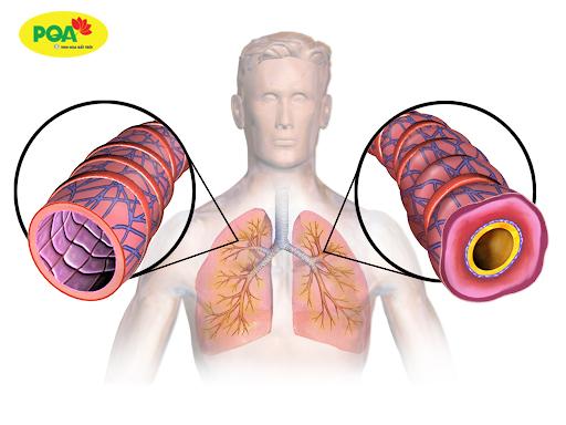Bệnh hen suyễn có chữa được không