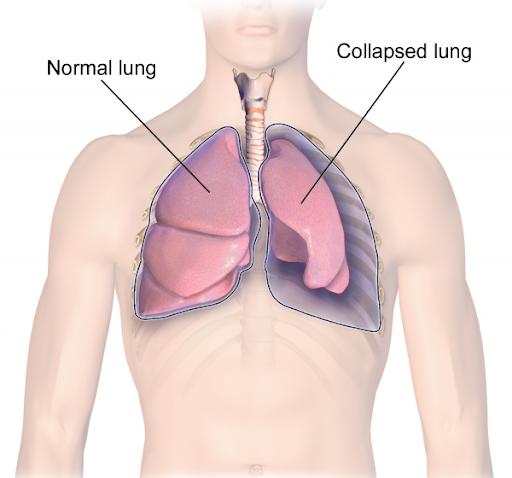 Biến chứng hen suyễn gây xẹp phổi